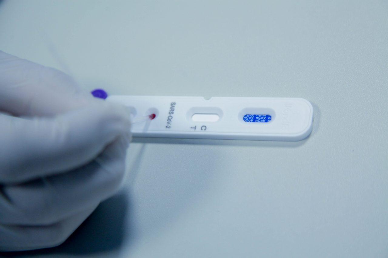 Coronavirus-Teste-Rápido-Covid-Fotos-Frank-Néry-26.05-Secom - Governo de Rondônia